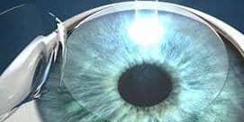 משקפיים לאחר ניתוח קטרקט – כיצד ומתי נבצע התאמה של משקפיים לאחר ניתוח קטרקט