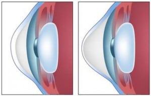 קרנית בריאה (משמאל) לעומת קרטוקונוס