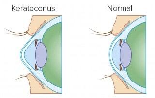 מיפוי קרנית - קרטוקונוס