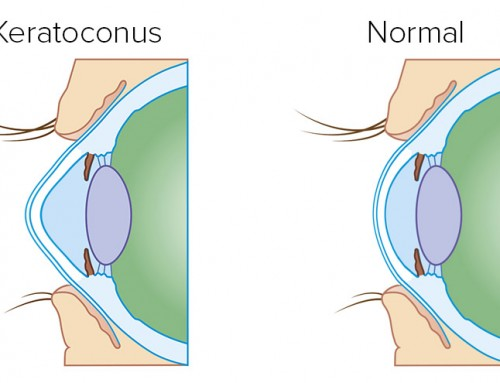 קרטוקונוס – על חשיבות האבחון והטיפול המוקדם